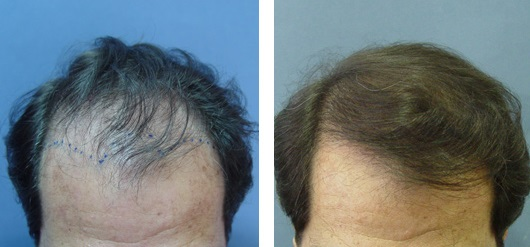 05-before-after-hair-transplant